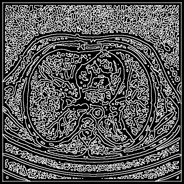 Spaghetti effect with Marr Hildreth edge detection
